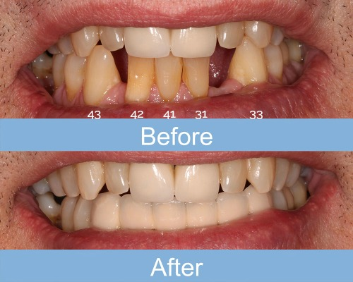 Smile Gallery | Before & After | Innisfail Family Dental